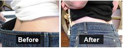Ремонт брюк, джинсов и спортивных штанов
